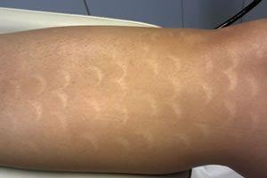 Quanto è rischiosa la depilazione laser?